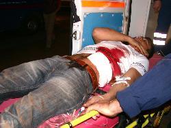 Okul kavgasında  bir kişi bıçaklandı.11850