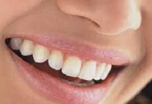 Diş bakımındaki şehir efsaneleri.7266