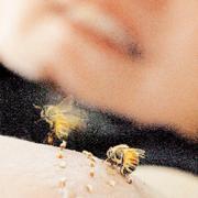 Romatizmaya arı zehiriyle tedavi.5931