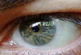 Güneş ışınları en çok gözleri etkiliyor .11225