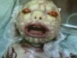 Adana'da, milyonda bir olan 'y�lan bebek' d�nyaya geldi .15537