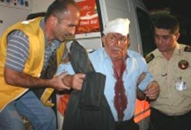 Adana'daki kazada 3 polis yaralandı.17050
