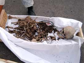 Kepçeyi vurdular iskeletleri buldular.8681