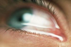 'Göz tansiyonu sinsi bir hastalıktır ihmale gelmez'.7392