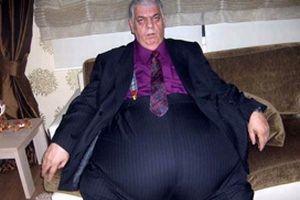 68 yaşındaki adam 5 buçuk saatte 45 kilo verdi.16721