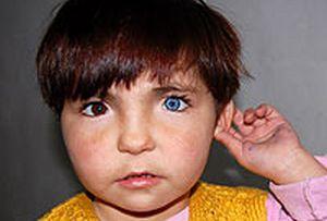 Bir gözü mavi diğeri kahverengi.11228