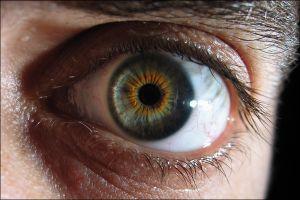 Bedava göz ameliyatı kör etti.20861