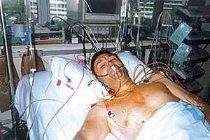 Çift taraflı akciğer nakli.20021