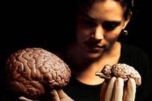 Kaç tane beyin hastalığı biliyorsunuz?.10160