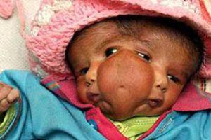 İki yüzlü bebek, ziyaretçi akınına uğruyor.14622