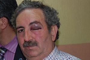 Öğretmen öğrenciyi dövdü, kızgın veli de öğretmeni.10969