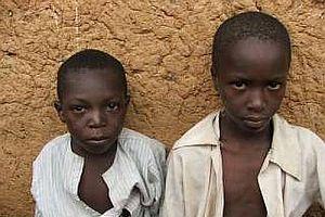 Nijerya'da kızamık salgını yüzünden 165 çocuk öldü.25468