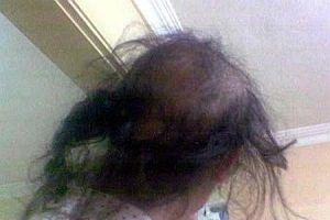 Saç boyası tanınmaz hale getirdi.10683