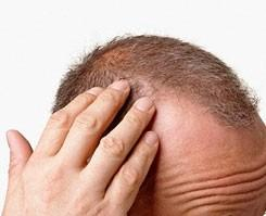 Saç dökülmesi nasıl önlenir?.8507