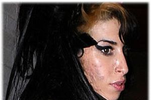 Amy'nin yüzü delik deşik oldu.10146