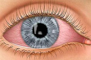 Baharla gelen göz alerjisine dikkat.16064