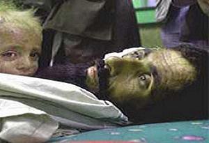 Afganistan'da sivil ölümleri arttı.11934