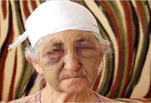 78 yaşındaki kadını, gelini dövdü.12853