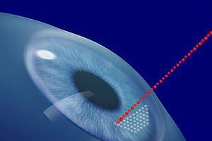 Göz ameliyatlarında yeni teknoloji.7610