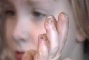 Küçük kız kendi bedenini yiyor!.6439
