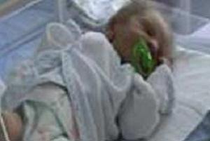 Bu bebek bağırsakları dışarda doğdu.8213