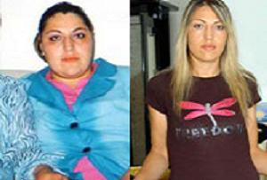 Doktorlara kızdı, 63 kilo verdi.12150