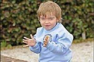 4 yaşında Alzheimer hastası.12784