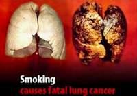 Sigara paketlerinde yeni uygulama.6017