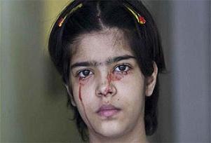 Bu kız 'kan ağlıyor'.8357