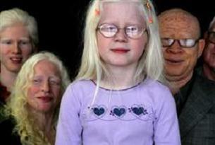 Tanzanya'da yine albino cinayeti.10986