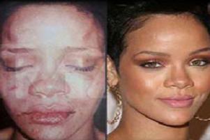 Brown, Rihanna'yı dövdüm dedi kurtuldu.9553