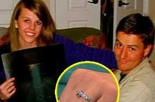 Evlilik yüzüğü midesinde çıktı!.11626