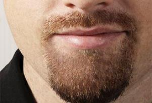 'Top sakal' kavgası kanlı bitti.11372