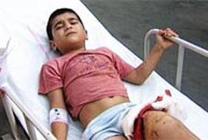 Pitbull, çocuğun bacağını parçaladı.11883