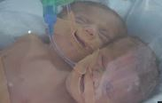 Yapışık ikizler dünyaya geldi!